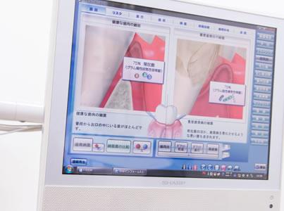 松原市の歯医者すが歯科のチェアモニター