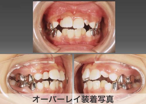 子どもの矯正歯科治療 オーバーレイ装着写真
