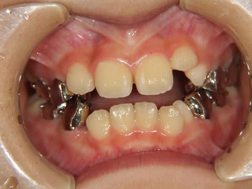 小児歯科矯正の症例写真 オーバーレイ治療