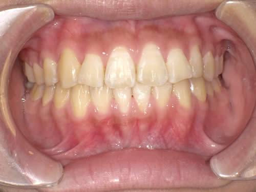 大人の矯正歯科治療の症例 ワイヤー矯正